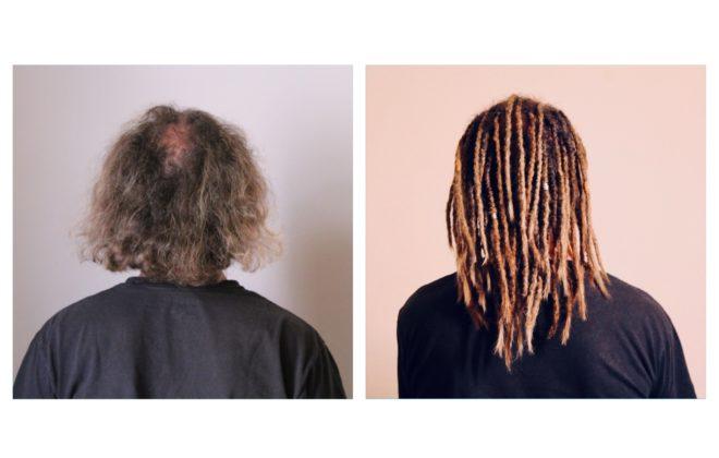 Pas ou peu de cheveux ? Les dreads sont possibles !